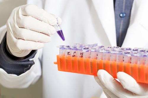 Alzheimer-Genvariante-Forschung