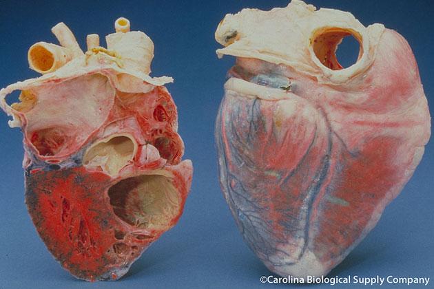 Medizin Herzmuskel mit Pflaster heilen Nachrichten