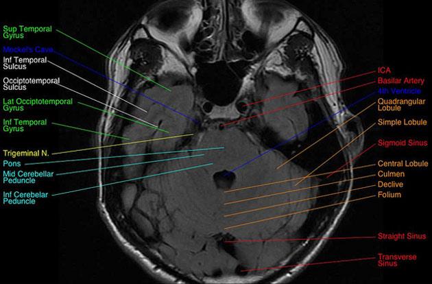 Neuer Digitaler Gehirnatlas 3D Nachrichten