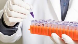TU Muenchen Alzheimer-Forschung