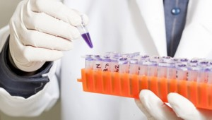 Torforschung Krebsgene Vielzeller Nachrichten